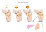 stadiazione del cancro al seno