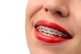 Fototapety Female open mouth showing metal Braces