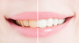 Fototapety Whiten teeth after bleaching or whitening