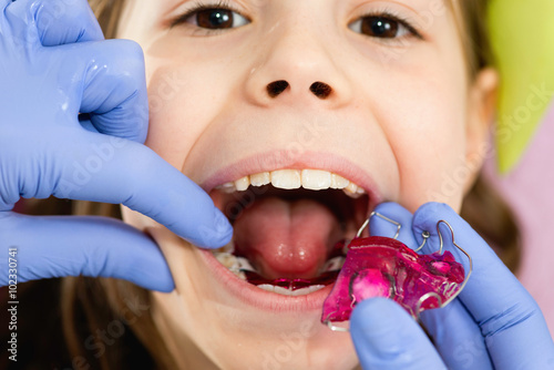 Poster Dental braces for cute little girl