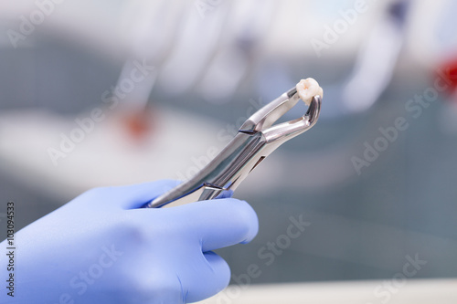 Tooth extraction - 103094533