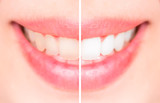 Close-up teeth female between before and after brush the teeth,