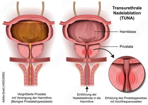 GamesAgeddon - Transurethrale Nadelablation, Prostata Operation ...