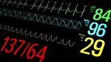 Patient Monitor in ICU. Closeup view.