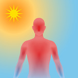 human heatstroke, thermic fever, thermoplegia, image illustration