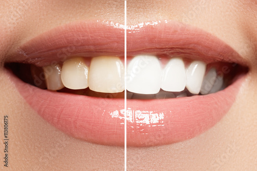 Perfect smile before and after bleaching Poster