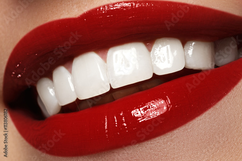 Póster Perfect smile after bleaching. Dental care and whitening teeth