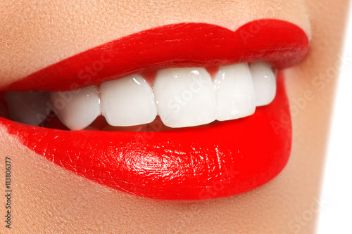 Perfect smile after bleaching