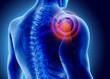 3D Illustration of shoulder painful.