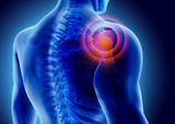 3D Illustration of shoulder painful. - 114404159