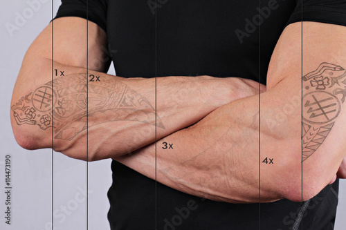 Laser tattoo removal before and after. Attractive Man with tattoo on his hand skin