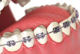 Fototapety Teeth with braces or brackets in open human mouth. Dental care c