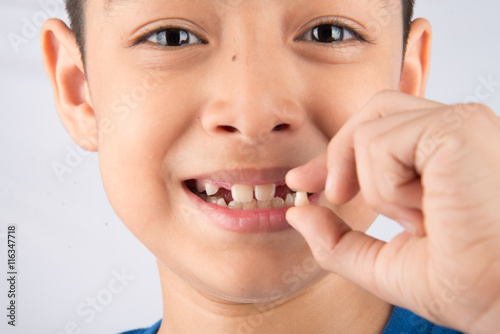 Poster Little boy showing baby teeth toothless close up waiting for new teeth