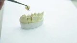 Inspection artificial crown to girth of neck of tooth, closeup.