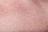 macro of skin with rash