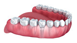Lower teeth and dental implant transparent render isolated on white . 3D illustration