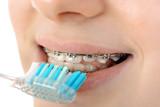 Teenager mit fester Zahnspange bei Zahnpflege mit Zahnbürste