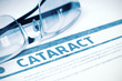 Cataract. Medicine. 3D Illustration.