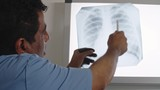 Latin-American doctor holding x-ray of chest and explaining it to somebody