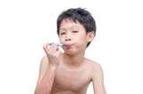 Young asian boy with skin rash holding thermometer over white,di