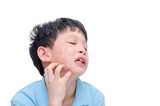 Young asian boy scratching his allergy face