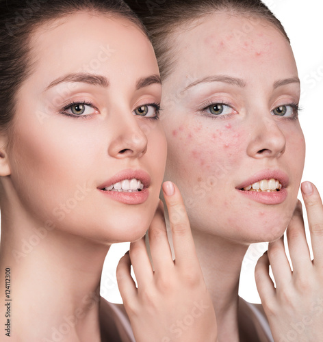 Poster Woman with problem skin on her face