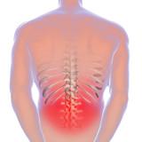 Sciatica - lower back pain - 126384994