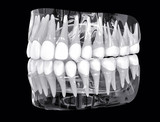 3D Isolated X-Ray Teeth. Tooths Dentistry Care Concept. - 126585537