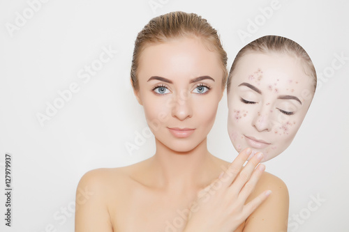put away bad sking with pimples,acne Poster