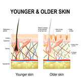 Skin changes or ageing skin.