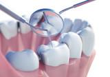 Zahnuntersuchung - Vorsorge 1