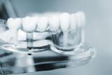 Fototapety Dentists dental teeth implant