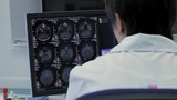 Doctor Working with X-rays brain on the computer