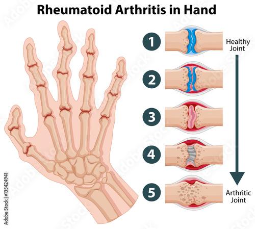 Staande foto Kids Diagram showing rheumatoid arthriitis in hand