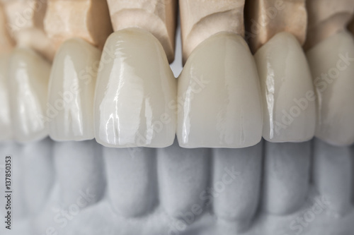 Ceramic teeth in the front - 137850353