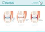 Joint anatomy, osteoarthritis and rheumatoid arthritis infographic - 144114782