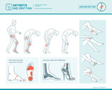 Foot pain and arthritis infographic - 144114924