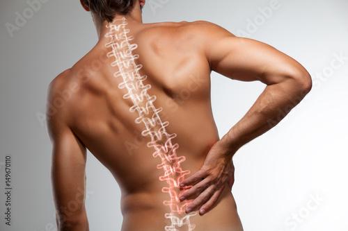 Leinwandbild Motiv Back pain