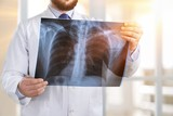 Doctor look x-ray. - 153131335