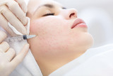 Needle mesotherapy. Cosmetic been injected woman's face