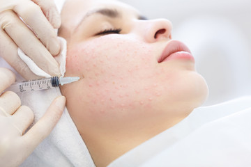 Needle mesotherapy. Cosmetic been injected woman's face © 4frame group