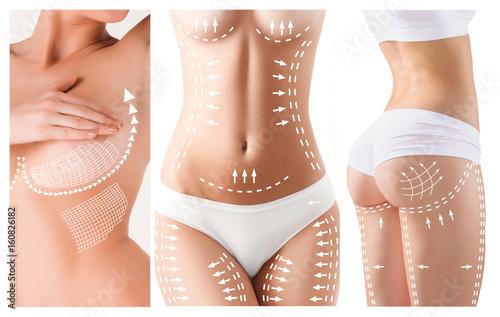 Leinwandbild Motiv The cellulite removal plan. White markings on young woman body