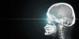 x ray of human head with light from eye - 163611981