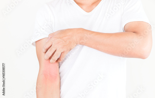 Young men scratch the itch on arm surface, Healthcare concept. - 165308577