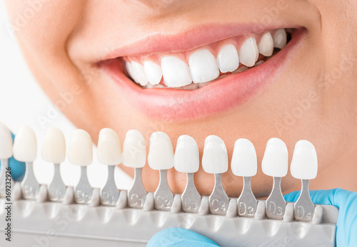 Leinwanddruck Bild Beautiful smile and white teeth of a young woman.