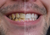 Teeth whitening concept. Smiling man with yellow teeth - before and after. - 171087531
