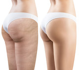 Female buttocks before and after treatment. - 172823985
