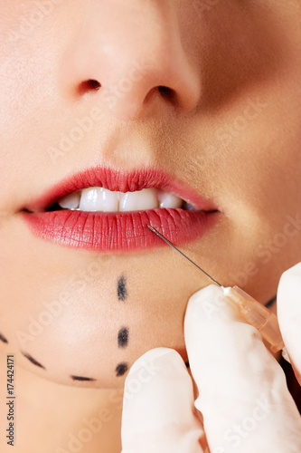 Close up of syringe injecting botox into female lips. Poster