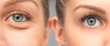 Woman eye bags before and after cosmetic treatment - 175530772