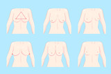 cartoon different chest shape - 175550738